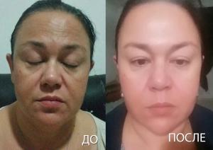 Мезотерапия - Лифтинг,подтяжка лица, до и после