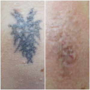 Удаление татуировки. 4 процедуры