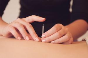 Акупунктура, иглоукалывание, главный метод Китайской медицины