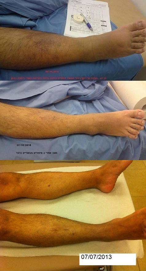 Лечение лимфостаза в краснодаре