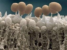 грибок стопы фото под микроскопом