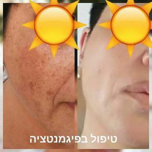 Процедуры для осветления кожи и удаления пигментации