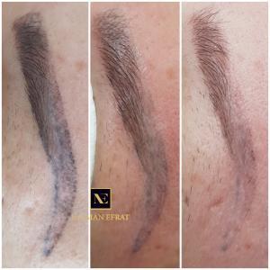 Удаление некачественного татуажа На фото результат  поэтапного удаления (три процедуры)