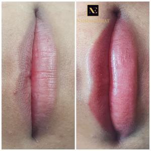 Корекция несиметричных губ
