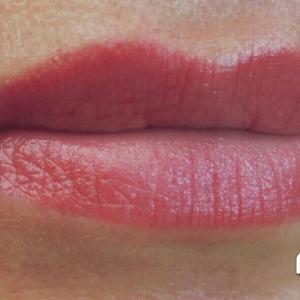 Заживших губы Год после процедуры