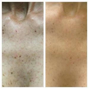Убираем пигментацию на груди: до и после;