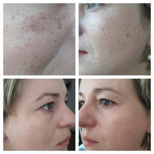 Удаление пигментации на лице: до и после;