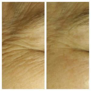Уменьшение морщин: до и после;