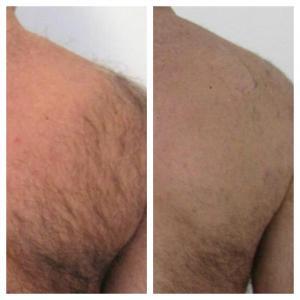 Удаление волос с тела; до и после пары процедур; результаты видны уже после первой процедуры;