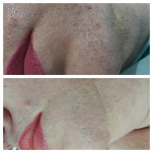 Удаление волос с лица;